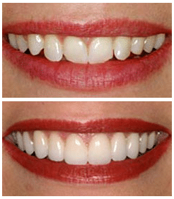 Dental veneers Brisbane